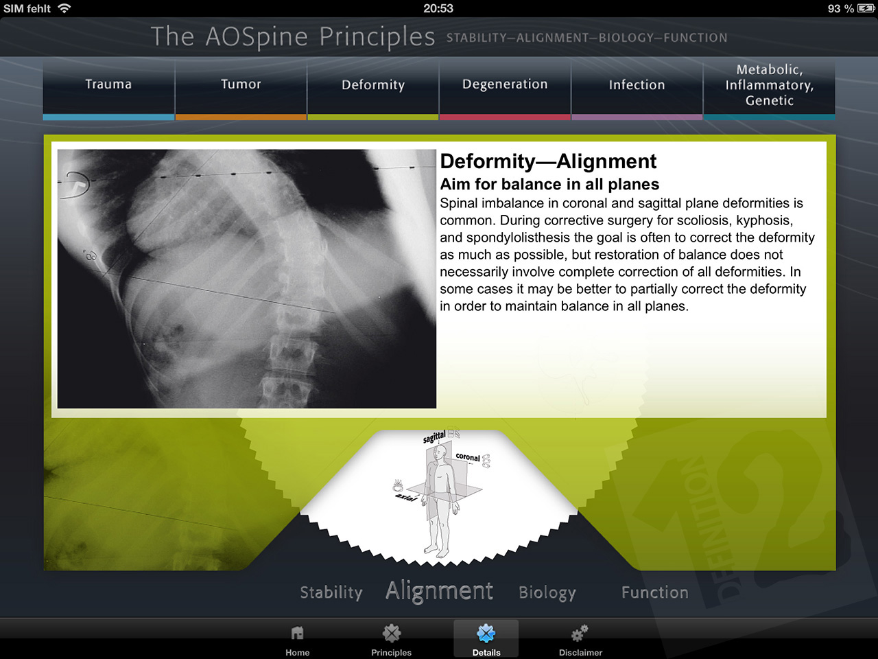 Definition12 - Software - Mobile - Aospine